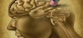 Нешто за Алцхајмеровата болест!